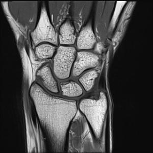My Wrist MRI